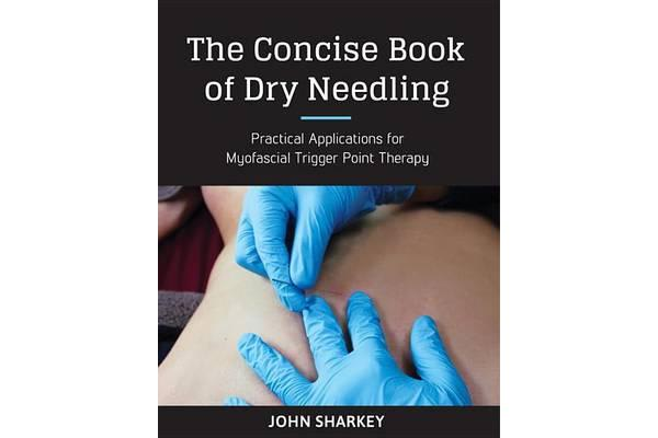 The Concise Book Of Dry Needling