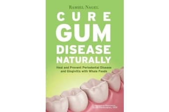 Cure Gum Disease Naturally - Heal Gingivitis and Periodontal Disease with Whole Foods