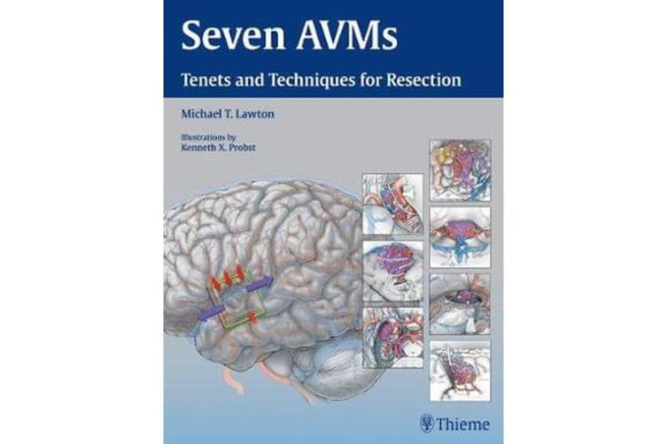 Seven AVMs - Tenets and Techniques for Resection
