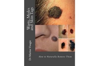 Warts, Moles and Skin Tags - How to Naturally Remove Them