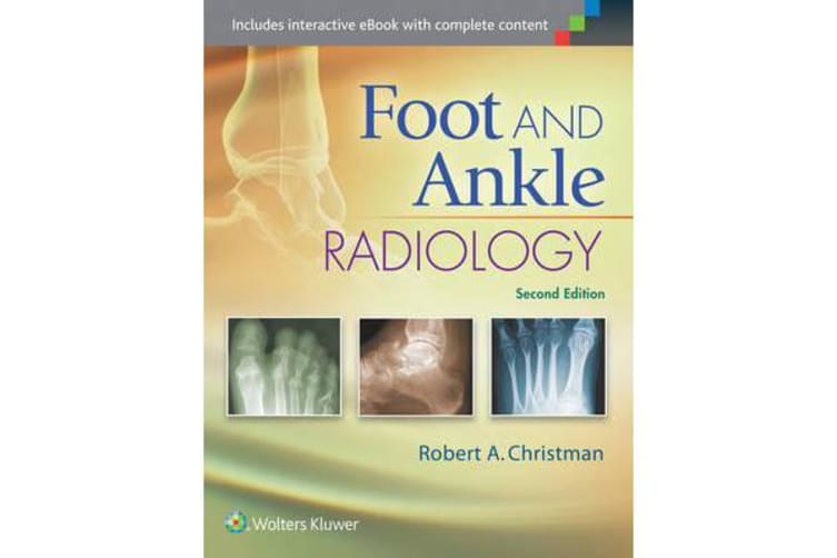 Foot and Ankle Radiology