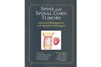 Spine and Spinal Cord Tumors - Advanced Management and Operative Techniques