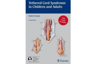 Tethered Cord Syndrome in Children and Adults