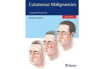 Cutaneous Malignancies - A Surgical Perspective