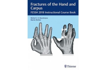 Fractures of the Hand and Carpus - FESSH 2018 Instructional Course Book