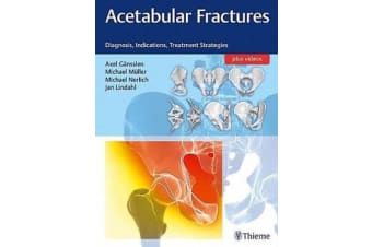 Acetabular Fractures - Diagnosis, Indications, Treatment Strategies