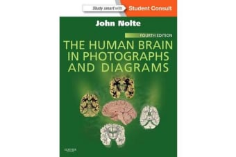 The Human Brain in Photographs and Diagrams - With STUDENT CONSULT Online Access