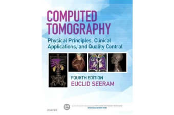 Computed Tomography - Physical Principles, Clinical Applications, and Quality Control