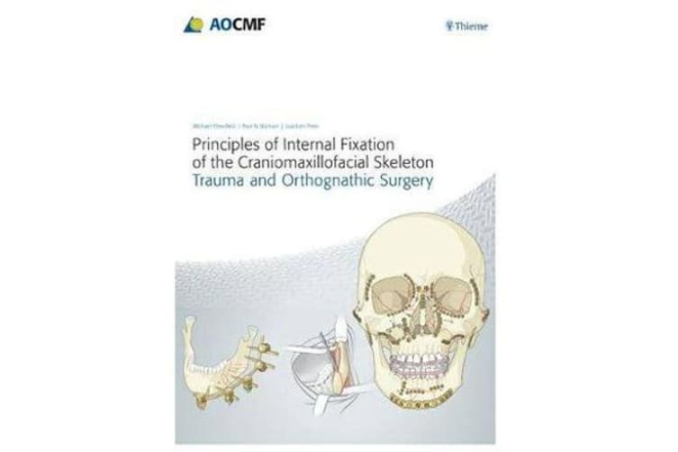 Principles of Internal Fixation of the Craniomaxillofacial Skeleton - Trauma and Othognathic Surgery